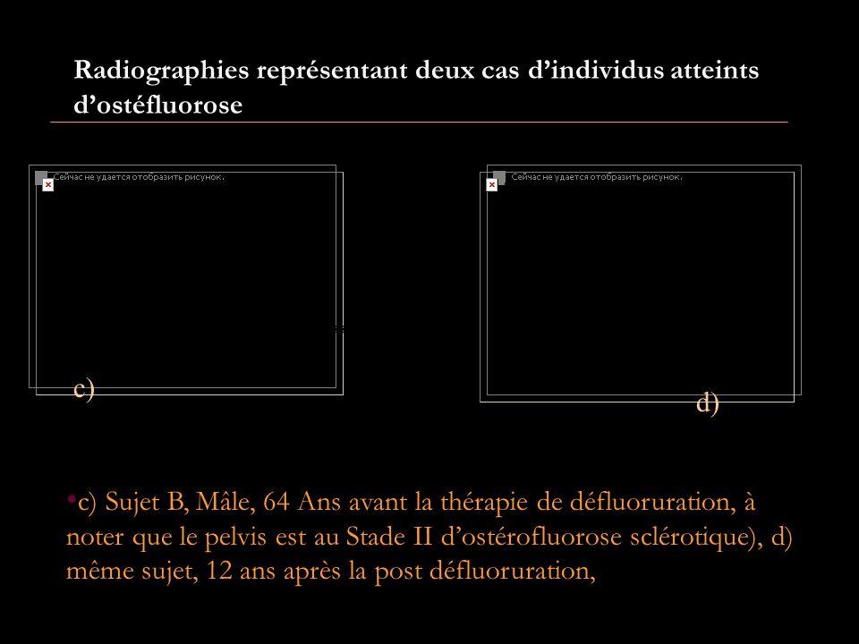 Radiographies représentant deux cas d'individus atteints d'ostéfluorose