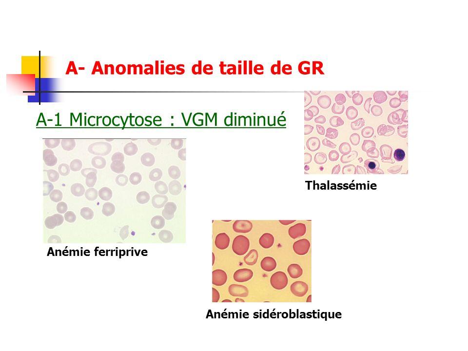 A- Anomalies de taille de GR