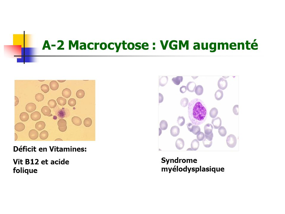 A-2 Macrocytose : VGM augmenté