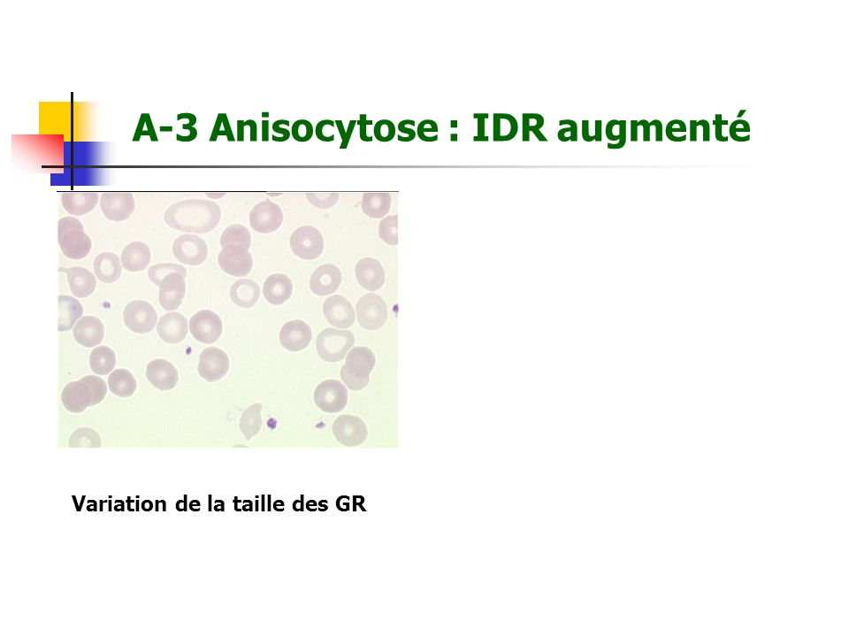 A-3 Anisocytose : IDR augmenté