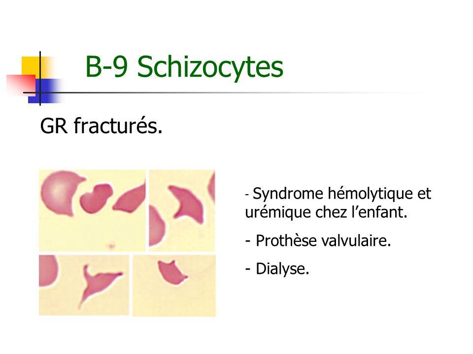 B-9 Schizocytes GR fracturés. Prothèse valvulaire. Dialyse.