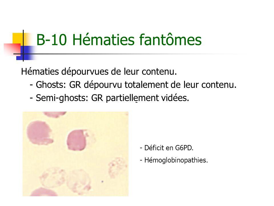 B-10 Hématies fantômes Hématies dépourvues de leur contenu.