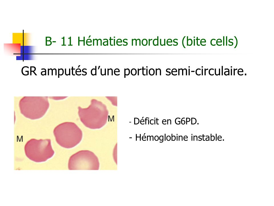 B- 11 Hématies mordues (bite cells)