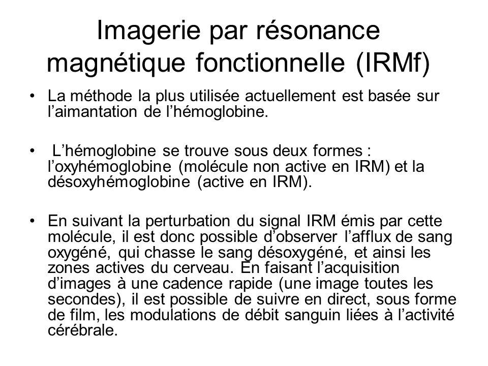Imagerie par résonance magnétique fonctionnelle (IRMf)
