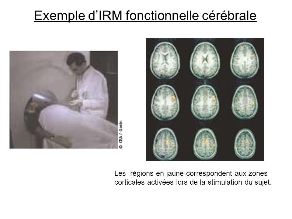 Exemple d'IRM fonctionnelle cérébrale
