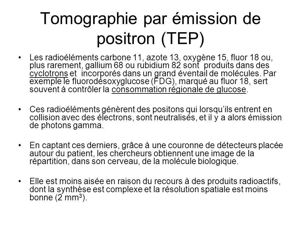 Tomographie par émission de positron (TEP)