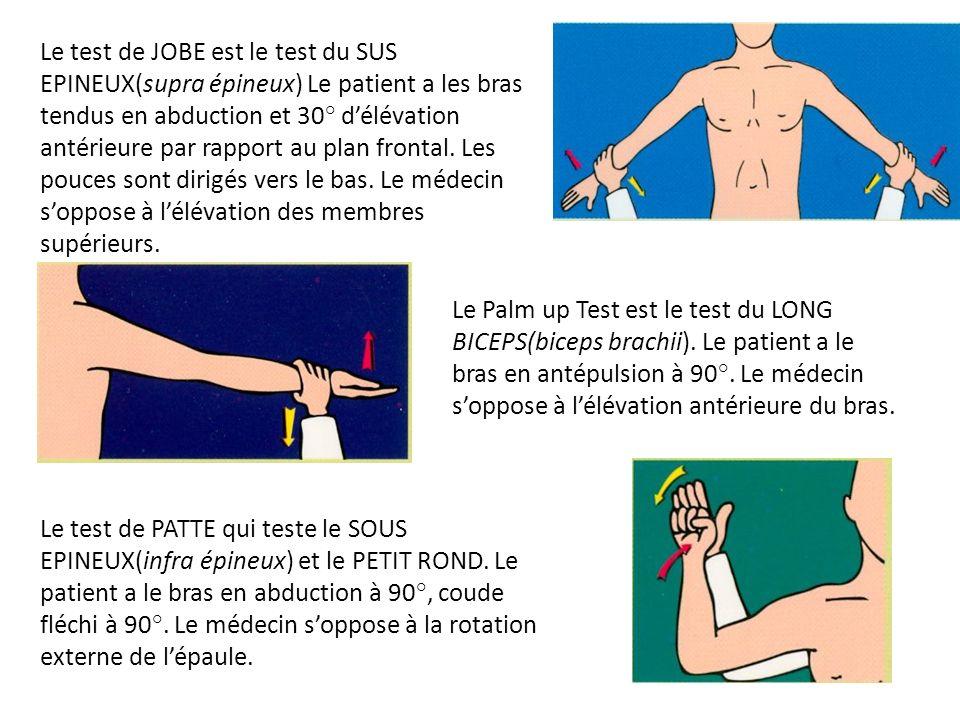 Le test de JOBE est le test du SUS EPINEUX(supra épineux) Le patient a les bras tendus en abduction et 30° d'élévation antérieure par rapport au plan frontal. Les pouces sont dirigés vers le bas. Le médecin s'oppose à l'élévation des membres supérieurs.