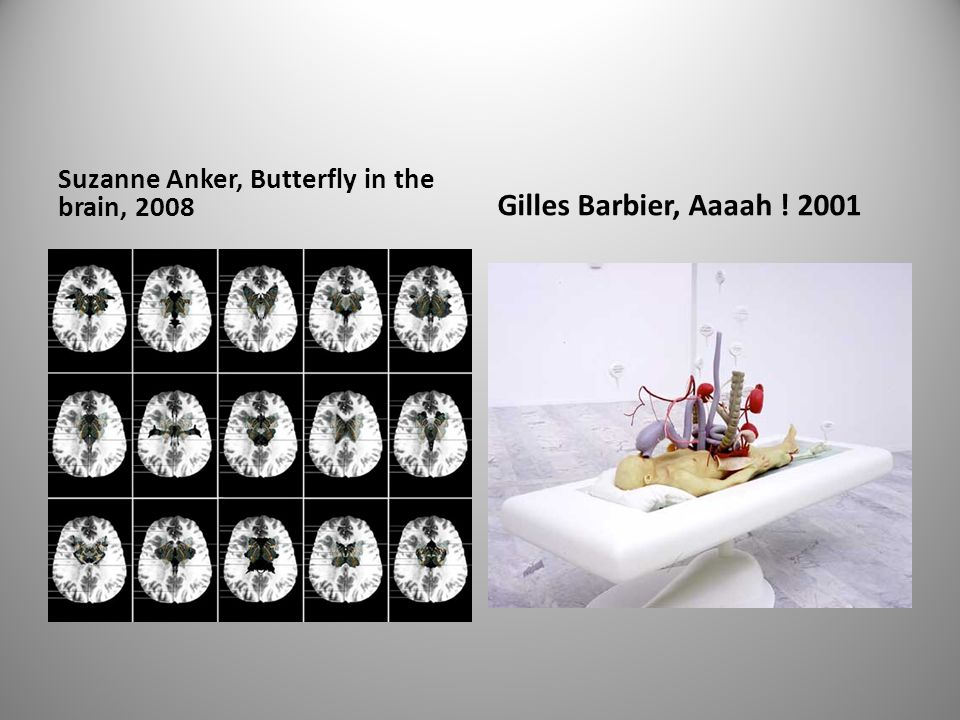 Suzanne Anker, Butterfly in the brain, 2008