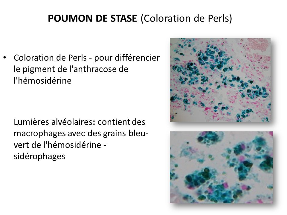 POUMON DE STASE (Coloration de Perls)