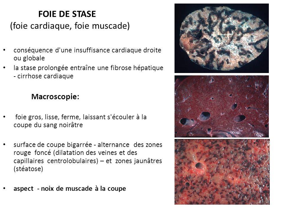 FOIE DE STASE (foie cardiaque, foie muscade)
