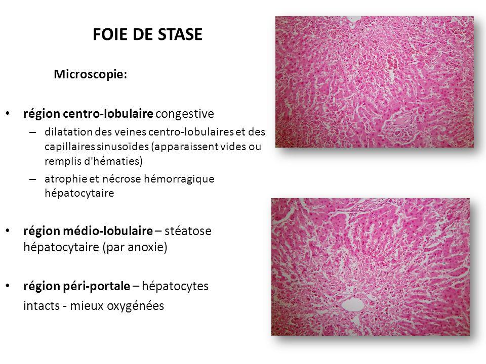 FOIE DE STASE Microscopie: région centro-lobulaire congestive