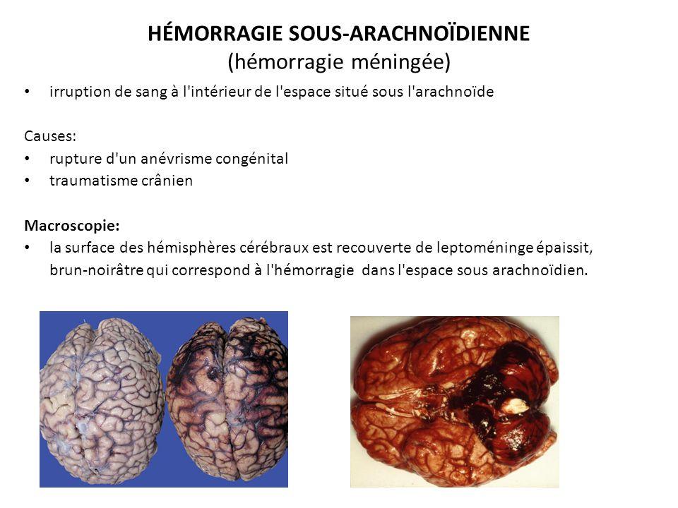 HÉMORRAGIE SOUS-ARACHNOÏDIENNE (hémorragie méningée)