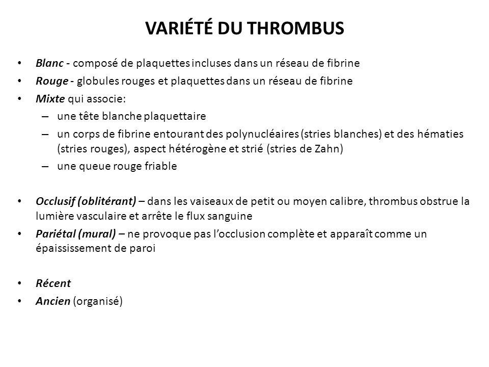 VARIÉTÉ DU THROMBUS Blanc - composé de plaquettes incluses dans un réseau de fibrine.