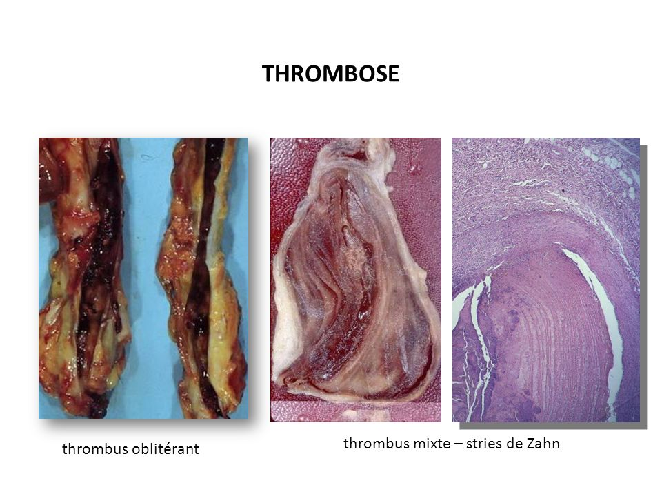 THROMBOSE thrombus mixte – stries de Zahn thrombus oblitérant