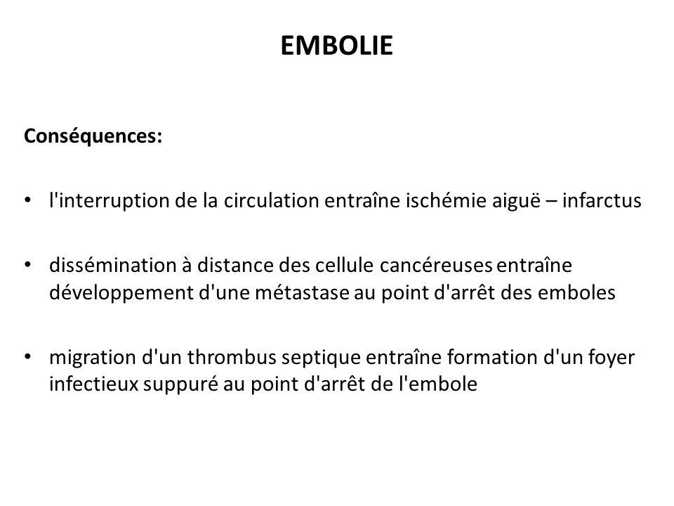 EMBOLIE Conséquences: