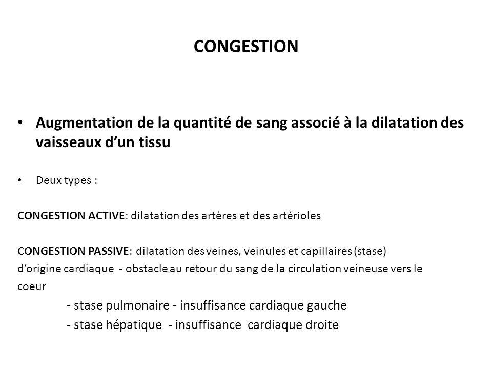 CONGESTION Augmentation de la quantité de sang associé à la dilatation des vaisseaux d'un tissu. Deux types :