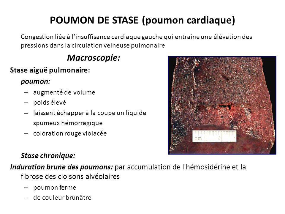POUMON DE STASE (poumon cardiaque)