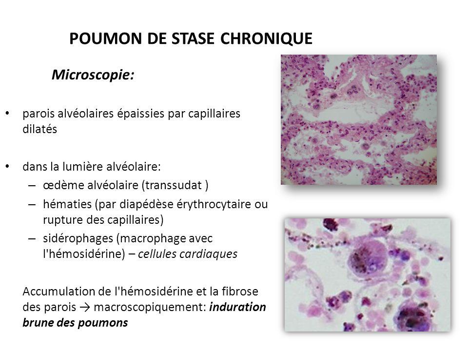 POUMON DE STASE CHRONIQUE