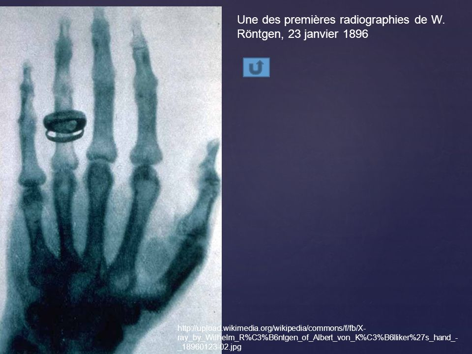 Une des premières radiographies de W. Röntgen, 23 janvier 1896
