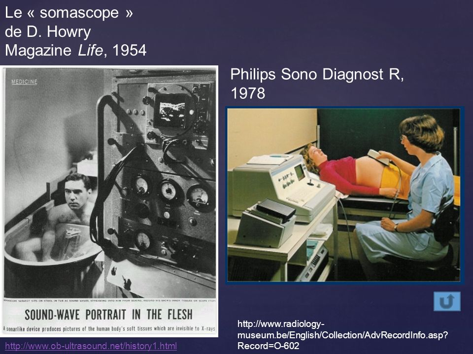 Philips Sono Diagnost R, 1978
