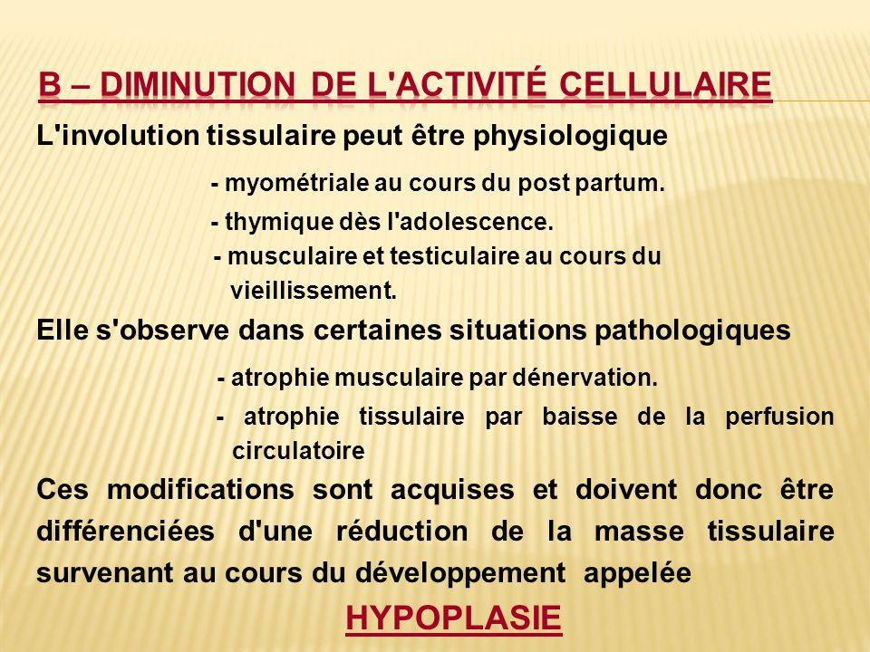 B – Diminution de l activité cellulaire