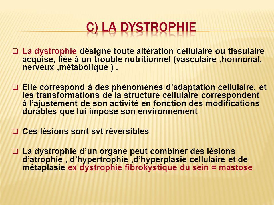 c) La dystrophie