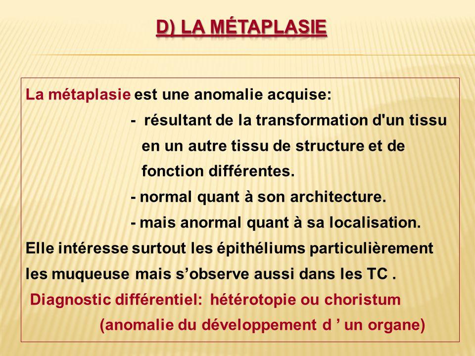 d) La métaplasie La métaplasie est une anomalie acquise: