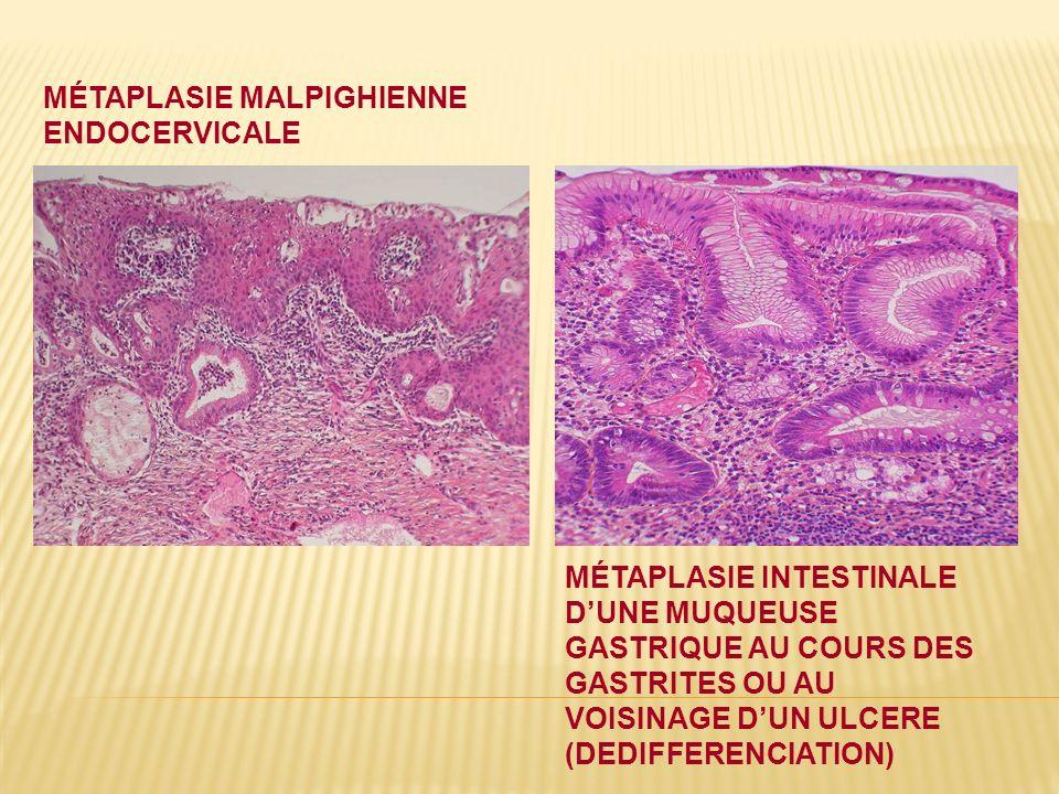Métaplasie malpighienne endocervicale