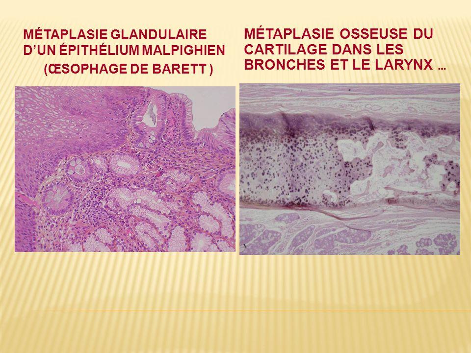 Métaplasie osseuse du cartilage dans les bronches et le larynx …