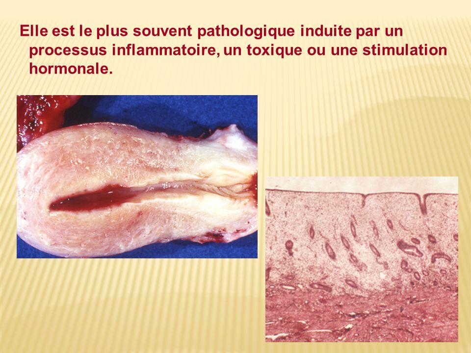 Elle est le plus souvent pathologique induite par un processus inflammatoire, un toxique ou une stimulation hormonale.