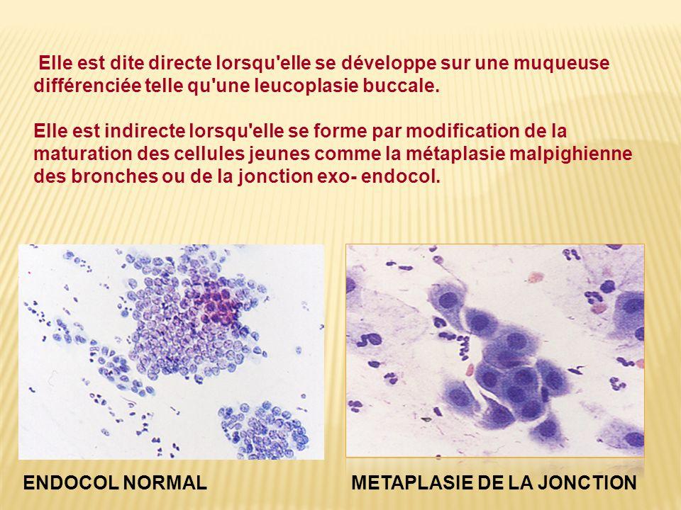 Elle est dite directe lorsqu elle se développe sur une muqueuse différenciée telle qu une leucoplasie buccale.