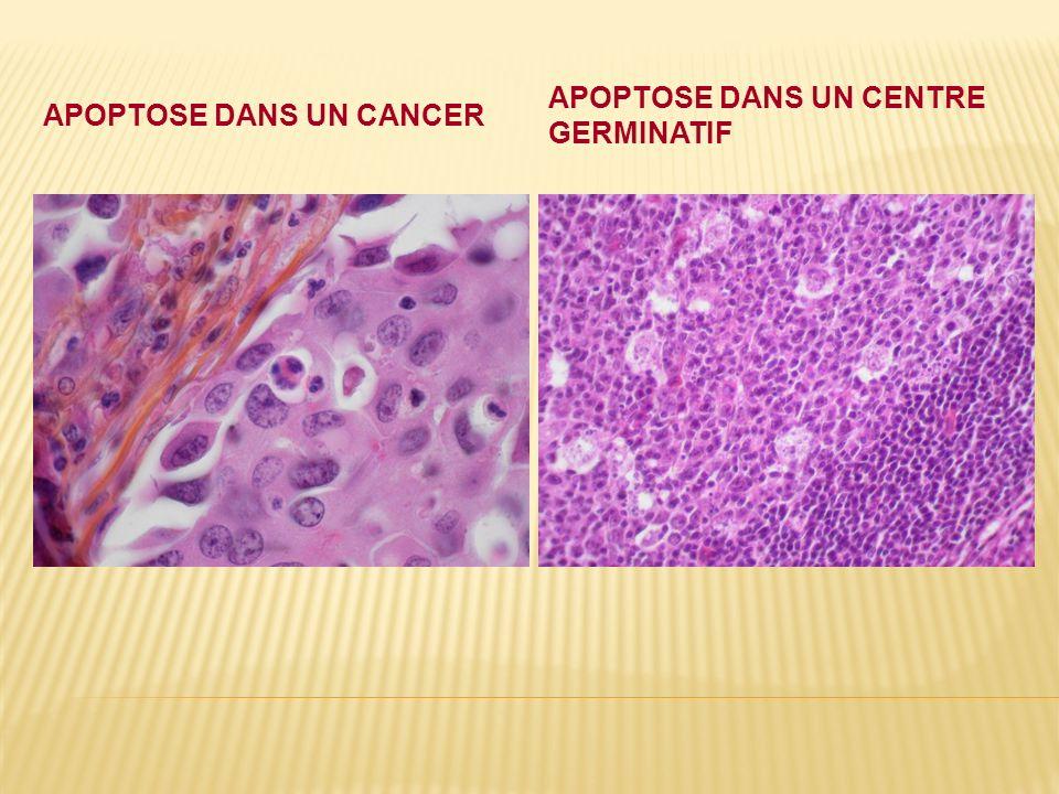 Apoptose dans un cancer
