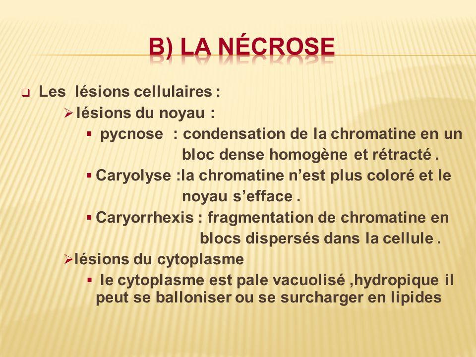 b) La nécrose Les lésions cellulaires : lésions du noyau :