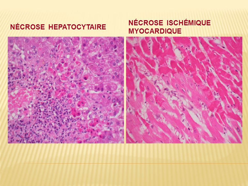 Nécrose hepatocytaire
