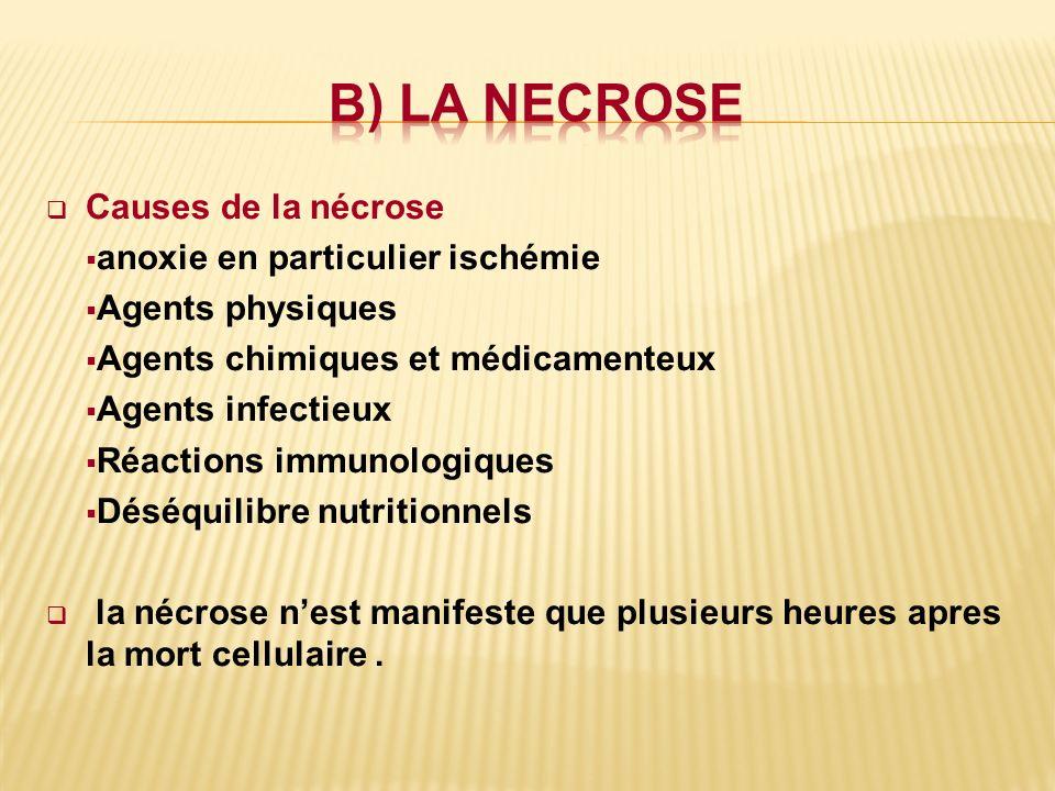 b) LA NECROSE Causes de la nécrose anoxie en particulier ischémie
