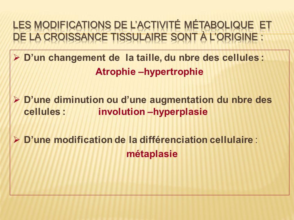 Atrophie –hypertrophie