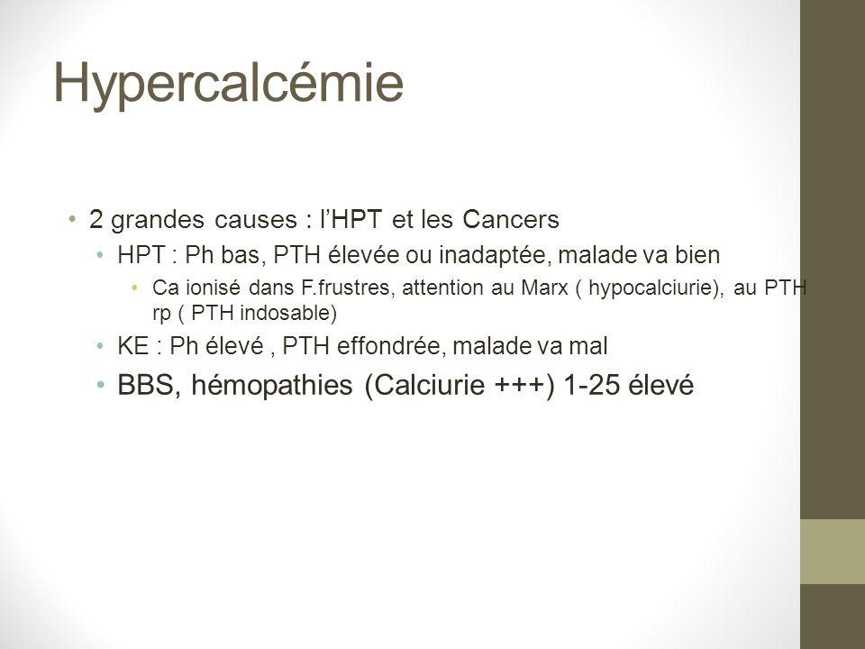 Hypercalcémie BBS, hémopathies (Calciurie +++) 1-25 élevé