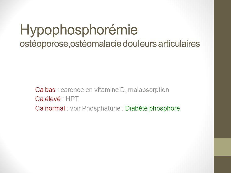 Hypophosphorémie ostéoporose,ostéomalacie douleurs articulaires