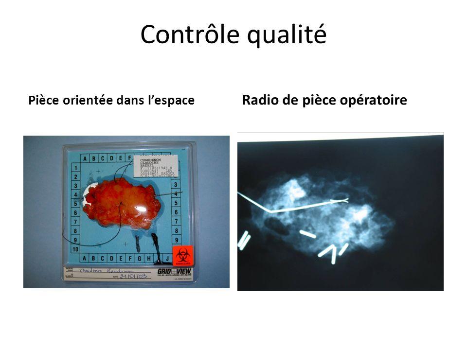 Contrôle qualité Radio de pièce opératoire