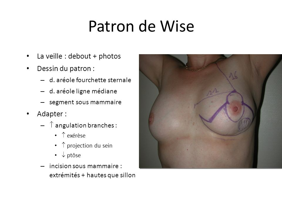 Patron de Wise La veille : debout + photos Dessin du patron :