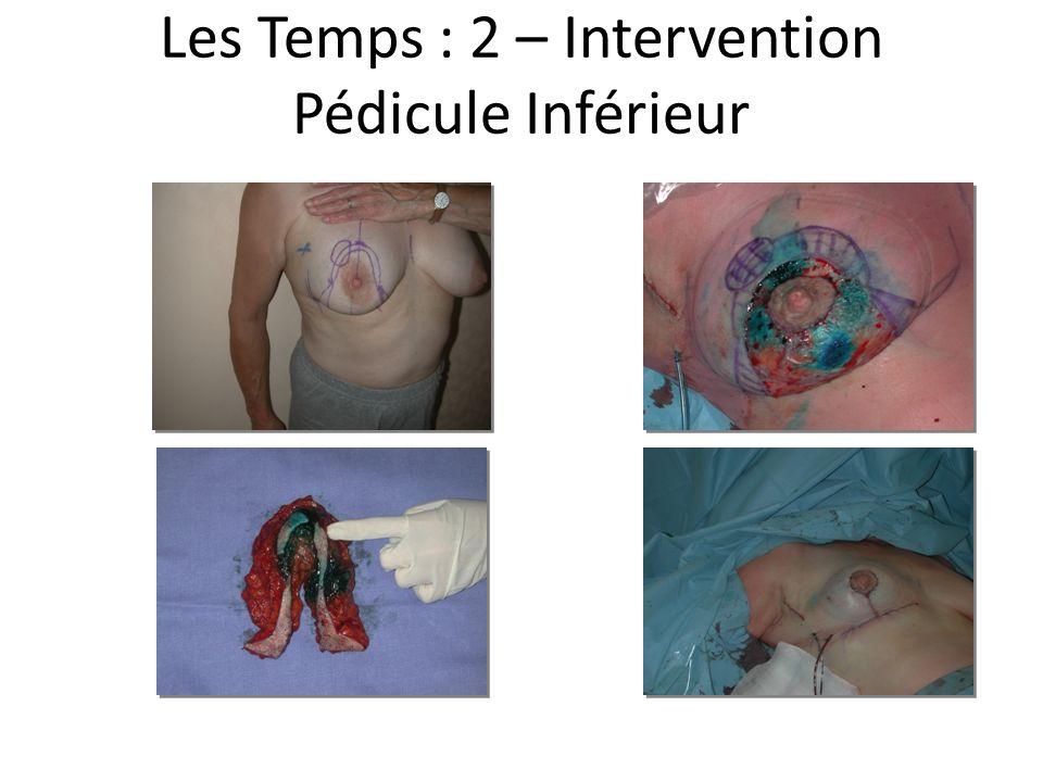 Les Temps : 2 – Intervention Pédicule Inférieur