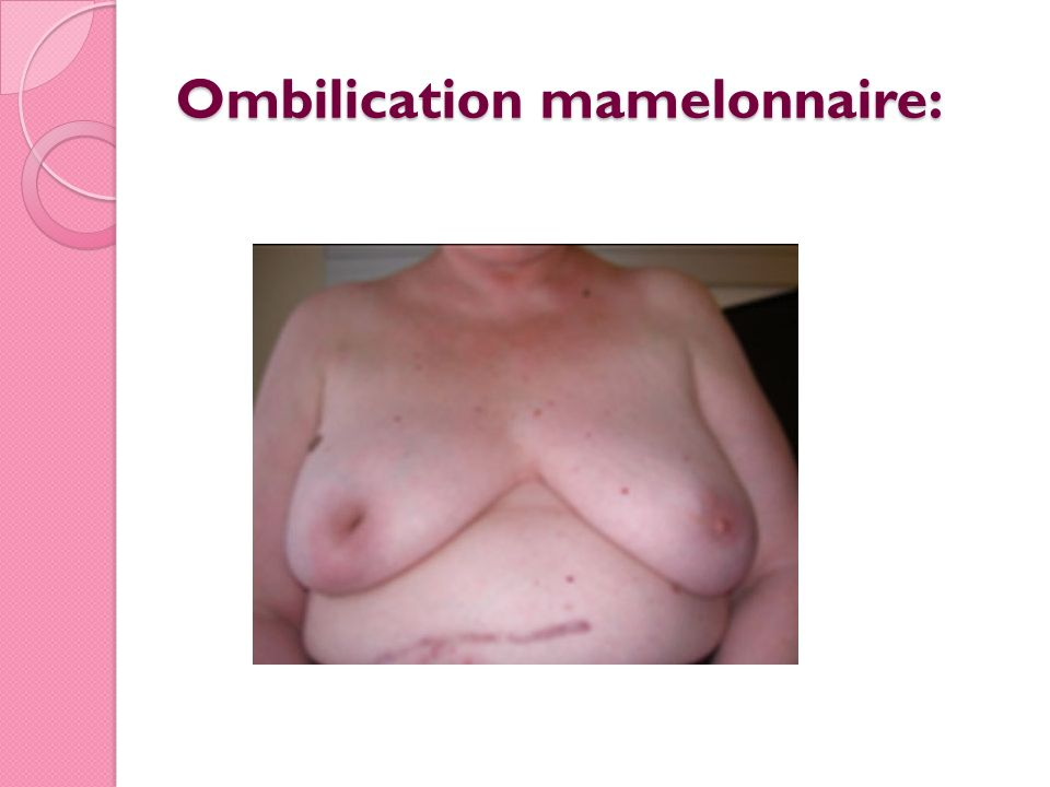 Ombilication mamelonnaire: