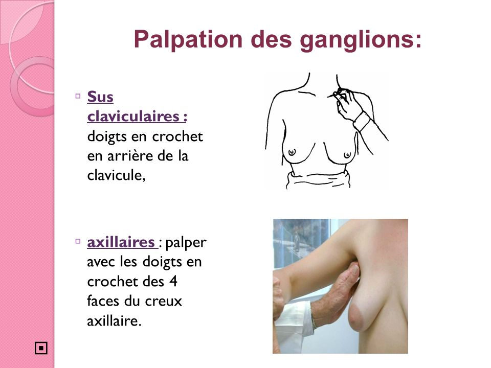 Palpation des ganglions: