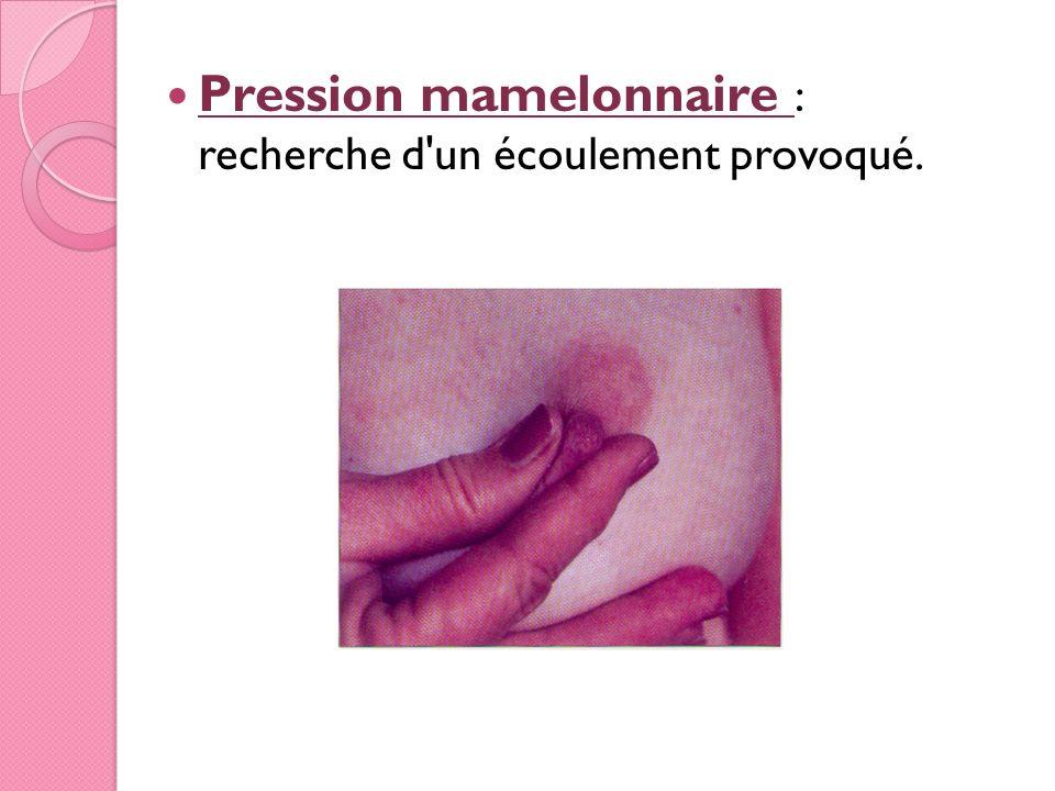 Pression mamelonnaire : recherche d un écoulement provoqué.