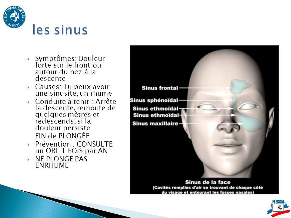 les sinus Symptômes: Douleur forte sur le front ou autour du nez à la descente. Causes: Tu peux avoir une sinusite, un rhume.