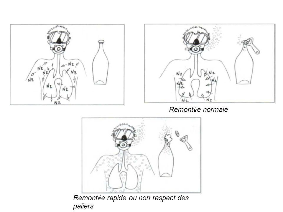 Remontée normale Remontée rapide ou non respect des paliers
