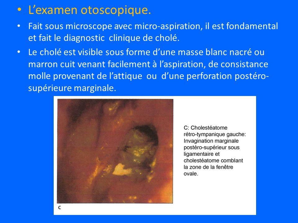 L'examen otoscopique. Fait sous microscope avec micro-aspiration, il est fondamental et fait le diagnostic clinique de cholé.