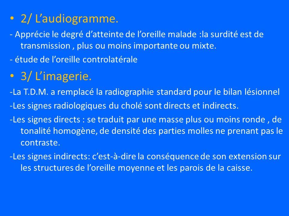 2/ L'audiogramme. 3/ L'imagerie.