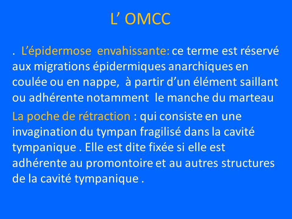 L' OMCC