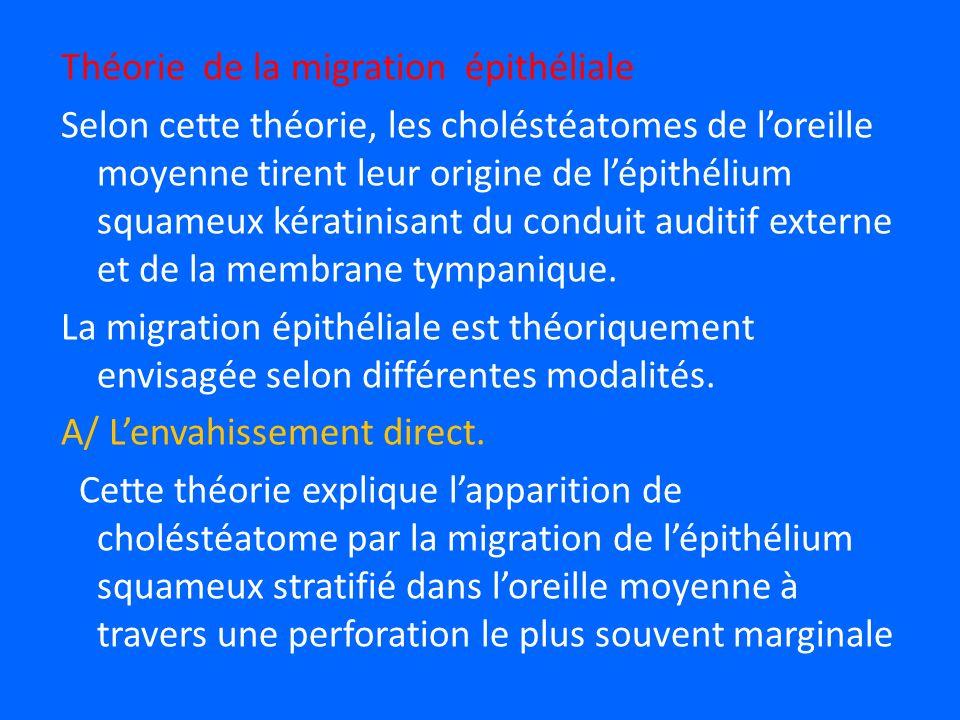 Théorie de la migration épithéliale Selon cette théorie, les choléstéatomes de l'oreille moyenne tirent leur origine de l'épithélium squameux kératinisant du conduit auditif externe et de la membrane tympanique.
